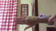Νεανικά χέρια σε 1 λεπτό με Dermaroller/ Younger looking hands instantly...