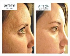 30 days with Nerium, I heart you. http://cspavins.nerium.com