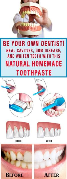 Heal Cavities, Gum Disease, And Whiten Teeth With This Natural Homemade Toothpaste - seeking habit, Teeth Whitening Remedies, Natural Teeth Whitening, Natural Toothpaste, Skin Whitening, Gum Health, Oral Health, Teeth Health, Dental Health, Dental Care
