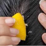 Καταπολεμηστε την τριχοπτωση με χυμο λεμονι