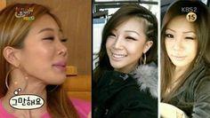 Unpretty Rapstar's Jessi Talks About Her Plastic Surgery | Koogle TV