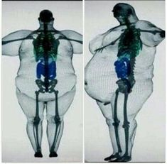 Obesity scan not me but think about it - fettleibigkeit Body Anatomy, Human Anatomy, Anatomy Humor, Medical Anatomy, Anatomy Reference, Physiology, Get Healthy, Human Body, Fitness Motivation
