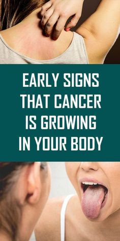 Health Discover Early Signs That Cancer Is Growing In Your Body Health Awareness Media Health And Wellbeing Health Benefits Health Tips Health Care Health Facts Health Trends Health Goals Mental Health Endometrial Cancer 100 Pour Cent, Basal Cell Carcinoma, Endometrial Cancer, Before And After Weightloss, Cancer Sign, Abdominal Pain, Health And Wellbeing, Natural Medicine, Herbal Medicine