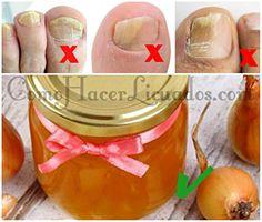 productos naturales para hongos en las uñas