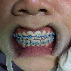 Braces Transformation, Cute Braces Colors, Braces Tips, Brace Face, Gold Chain Design, Teeth Braces, Cute Girls, Unique, Ideas
