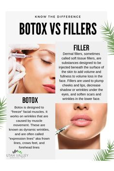 vs Fillers Botox and Dermal Fillers are designed to treat different areas of the face.Botox and Dermal Fillers are designed to treat different areas of the face. Botox Injection Sites, Botox Injections, Face Fillers, Botox Fillers, Dermal Fillers Lips, Botox Quotes, Relleno Facial, Cosmetic Fillers, Botox Before And After