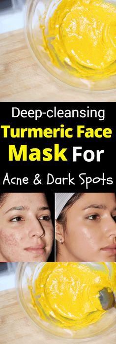 Diy turmeric face mask for acne treatment dark spots scars and wrinkles .Diy turmeric face mask for acne treatment dark spots scars and wrinkles turmeric face . DIY turmeric face mask for acne treatment Dark Turmeric Mask Acne, Tumeric Masks, Tumeric Face, Tumeric Mask For Acne, Acne Dark Spots, Acne Face Mask, Acne Skin, Acne Remedies, Health Remedies