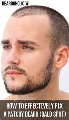 How to Effectively Fix a Patchy Beard (Bald Spot) - Beardoholic Grow A Thicker Beard, Thin Beard, Bald Spot In Beard, Beard Growing Tips, Beard Hair Growth, Patchy Beard, Beard Styles Patchy, Dreams, Beard Styles