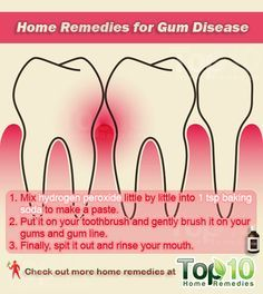 Prev post1 of 3Next Gum disease, also known as gingivitis, is a common condition characterized by symptoms like persistent bad breath, red or swollen gums, bleeding gums, receding gums and loose teeth. If not treated, it can advance to periodontitis and lead to further complications. The primary cause of gum disease is poor oral hygiene,
