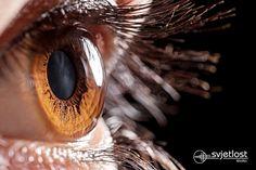Zdravljenje blagih in srednje težkih primerov keratokonusa je v nošenju očal in poltrdih ali trdih kontaktnih leč in redno spremljanje progresije bolezni. Za progresivne oblike bolezni   svetujemo cross linking metodo.