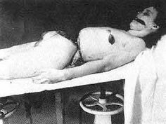 Black Dalia on the Autopsy table Morgue Photos, Dahlia Noir, The Black Dahlia Murder, Crime Of The Century, Famous Murders, Wierd Facts, Post Mortem Photography, Criminology, Cold Case