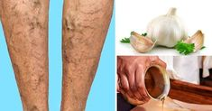 Varicose Veins Remedies 10 Natural Remedies and Exercises to Get Rid of Those Nasty Varicose Veins Cough Remedies, Holistic Remedies, Natural Home Remedies, Health Remedies, Yoga For Arthritis, Rheumatoid Arthritis Symptoms, Varicose Vein Remedy, Varicose Veins, Forme Fitness