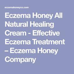 Eczema Honey All Natural Healing Cream - Effective Eczema Treatment – Eczema Honey Company