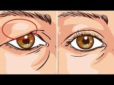 How To Treat Droopy Eyelids Naturally. The Results Are Amazing! How To Treat Droopy Eyelids Naturally. The Results Are Amazing! Drooping Eyelids, Droopy Eyes, Droopy Eye Makeup, Saggy Eyelids, Makeup Eyes, Tighten Loose Skin, Skin Tightening Cream, Skin Firming, The Face