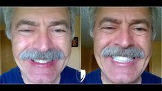 The official site of Brighter Image Lab.Order authentic Press On Veneers, BILVeneers, and IncrediBIL Veneers. Perfect Smile Teeth, Misaligned Teeth, Crooked Teeth, Dental Veneers, Smile Makeover, Smile Design, Smile Because, Cosmetics, Lab