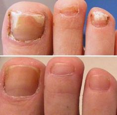 Need a quick and easy cure for toenail fungus? Watch this short youtube video to learn some easy and cheap cures for toenail fungus which you can apply right from home.