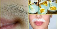 How to Remove upper lip hair naturally? Unwanted hair on the upper lip is such a nuisance! Girls understand this better. The hair growth differ from woman to woman, some have more, some are blessed with less. Remove Unwanted Facial Hair, Unwanted Hair, Upper Lip Hair, Tips Belleza, Laser Hair Removal, Beauty Care, Health And Beauty, How To Remove, Skin Care
