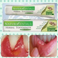 SELLING OF HERB NATURCENTIAL TOOTHPASTE FOR YOUR ORDER AND INQUIRY GMAIL: dleoligao@gmail.com SKYPE: duwarf2007 VIBER/WHATSAPP: +821071450385 NaturaCentials Herbal Toothpaste cleans teeth, fights cavities, prevents plaque, keeps gums healthy, and freshens breath. Naturacentials Herbal Toothpaste is made with five of nature's effective oral care ingredients - Bee Propolis, Tea Tree Extract, Myrrh Extract, Piper Betel Extract, and Aloe Vera Extract. This toothpaste makes your everyday ritual… Herbal Toothpaste, Bee Propolis, Heath Care, Teeth Cleaning, Cavities, Tea Tree, Health And Wellness, Herbalism, Herbs