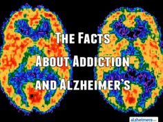 The Facts About Addiction and Alzheimer's