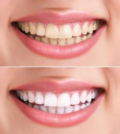 The outer layer of the teeth is enamel. Due to Bad dental hygiene this layer thins away. Checkout the best ways to use hydrogen peroxide for teeth whitening Charcoal Teeth Whitening, Natural Teeth Whitening, Charcoal Toothpaste, Whitening Kit, Hydrogen Peroxide Teeth, Teeth Whiting At Home, Teeth Bleaching, White Teeth, Dental Implants