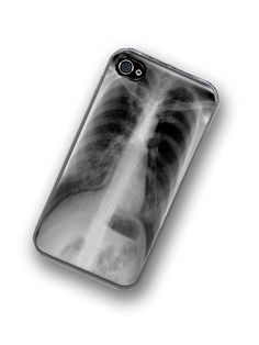 iPhone Case XRay