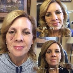 "THIS!!! This is why I continue to post and share about these amazing products! I LOVE Katie's story and her results. ""Ok here is my before and after from my first skin cancer surgery. I had the surgery on December 1st. I am still healing, and I KNOW using Rodan and Fields Soothe is helping tremendously in the healing process! I'm truly thankful, and am so excited to now have the opportunity to help others on their journey to healthier skin!"" Do you want to help others and get the best skin…"