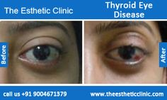 Thyroid Eye Disease Surgery ** You can find more details by visiting the image link.