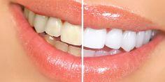 KARBONAT ve ÇİLEK Çilek, diş eti kanamasını durdurucu özelliğe sahiptir. Ayrıca diş yüzeyindeki zorlanmaları ortadan kaldırır ve plak oluşumunu engeller. Karbonattaki sodyum bikarbona