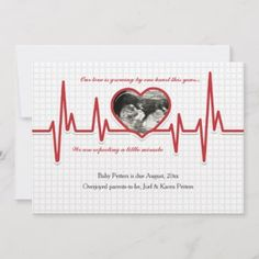 Shop Beating Heart Photo Pregnancy Announcement created by CottonLamb. Valentines Pregnancy Announcement, Pregnancy Announcement Cards, Pregnancy Humor, Pregnancy Photos, Graphic Art Prints, Miracle Baby, Bridal Shower Party, Photo Heart, Expecting Baby