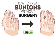 Foot issues like bunions can have a drastic impact on your pace and ultimately on your daily schedule. A bunion is defined as a bony bump that develops on the joint at the base of your big toe. This type of foot deformity consists of both bone and soft tissue. It occurs when the big …