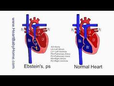 maxresdefault.jpg (1280×720)  La malformazione di Ebstein è una cardiopatia congenita rara, caratterizzata dalla dislocazione rotazionale, verso la punta del ventricolo destro, dei lembi settale e inferiore della valvola tricuspide, normalmente situati a livello della giunzione atrio-ventricolare. La prevalenza è stimata in circa 1/50.000-1/200.000. Entrambi i sessi possono essere colpiti in eguale misura. I sintomi clinici sono eterogenei e dipendono dalla gravità delle lesioni (estensione…