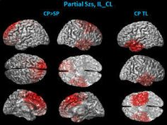 New non-invasive method for diagnosing epilepsy: A team of University of Minnesota biomedical engineers and researchers from Mayo Clinic just published a groundbreaking study that outlines how a new type of non-invasive brain scan taken immediately after a seizure gives additional insight into possible causes and treatments for epilepsy patients.