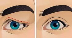 How To Treat Droopy Eyelids Naturally (Amazing Result. Do you have drooping eyelids, sagging eyelids, or hooded eyes? Hooded Eye Makeup, Hooded Eyes, Drooping Eyelids, Makeup For Droopy Eyelids, Cotton Swab, Sagging Skin, Saggy Eyelids, Wash Your Face, Beauty Hacks