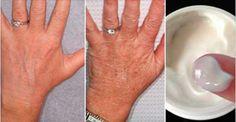 Se suas mãos estão enrugadas, use este creme caseiro e elas ficarão macias outra vez.