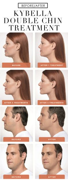We tried it: Kybella double chin treatment