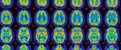 Sleep Could Help Stave Off Alzheimer's And Memory Loss, According To New Study The Huffington Post |  ByAlena Hall Email Posted: 06/02/2015