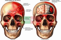 (A) Basilar skull fracture in the temporal bone can cause ...