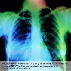 Coronaviruses cause respiratory infections in humans and animals. NCoV is known to cause pneumonia and sometimes kidney failure.