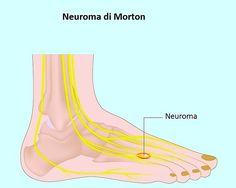 Neuroma de Morton, pies, dedos, tercero, cuarto, el dolor, la neuralgia, la…