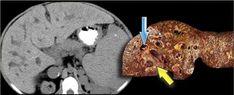 The Radiology Assistant : Biliary duct pathology Caroli Disease, Medullary Sponge Kidney, Portal Hypertension, Bile Duct, Ulcerative Colitis, Radiology, Ultrasound