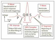 Image result for picture of an ecg strip showing time and speed