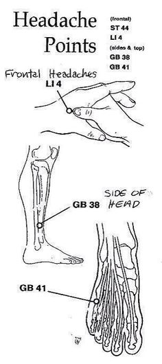 Pressure points to stop headaches - THIS ACTUALLY WORKS!!