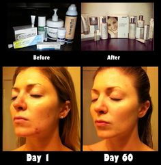 Threw away all the Rx medications to clear up acne and tried Enfuselle for just 60 days... the results are pretty clear.