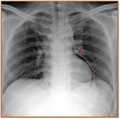 Pneumopericardium