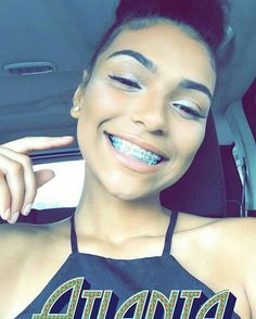 By Figuring Out Exactly Which Type Of Braces Fit Your