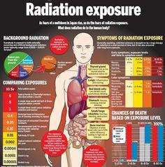 Radiation exposure infographic - Radiation sickness - Radiation Protection - Health advice - http://radiationprevention.com/top-5-radiation-sickness-symptoms/