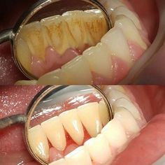 Dentaltown - Ignore your teeth and they'll go away. When was the last time you had your teeth cleaned?