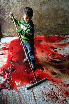 #Israelnews - Horrible Images of child And Polls Of Israel #Palestine conflict