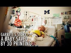 Baby's life saved after 3D printed devices were implanted to restore his breathing #GoBlue