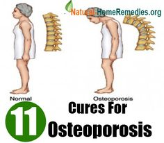 Home Remedies - Natural Remedies - Home Remedy - http://www.natural-homeremedies.org/blog/natural-cure-for-osteoporosis/